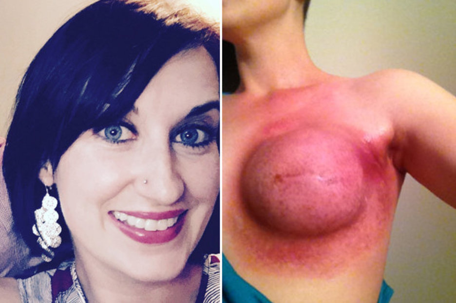 Breast cancer and reconstruction