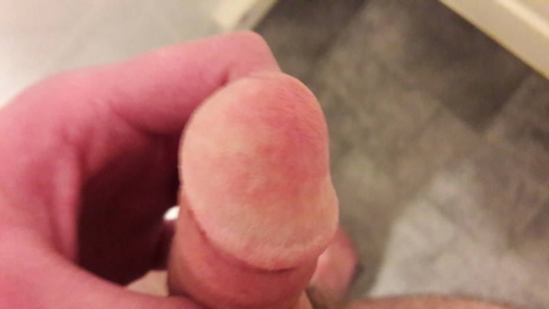 What is this dry flaky white and red spot on my penis