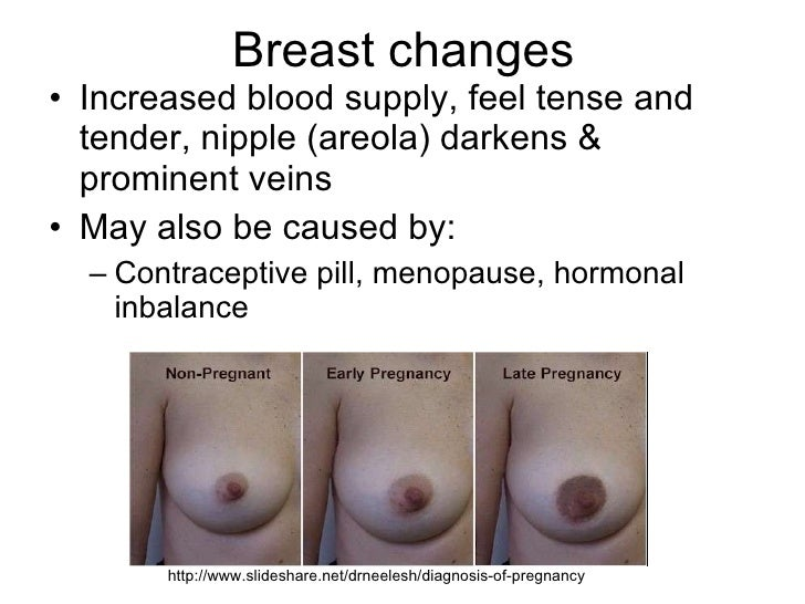 No breast growth during early pregnancy
